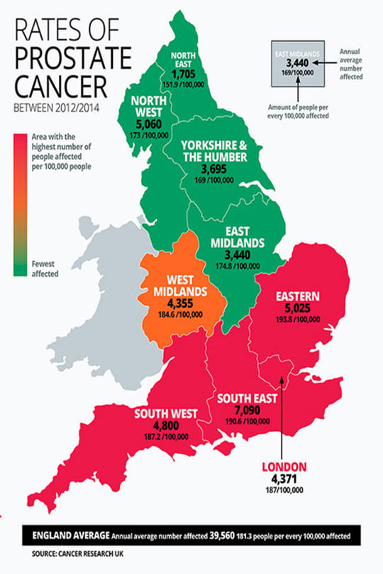Cambridge Prostate Cancer rates of prostate cancer in the UK